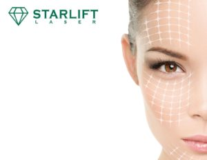 Agence Webmarketing Paris - Starlift Lasers - Fabricant Esthétique